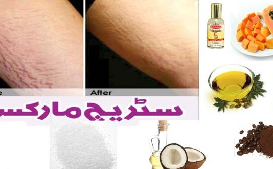 Remove Stretch Marks Guaranteed Home Remedies