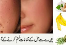 Remove Mole on Face Naturally to Get a Spotless Skin